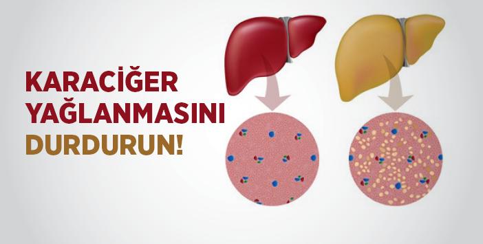 Karaciğer Yağlanmasını Durdurun
